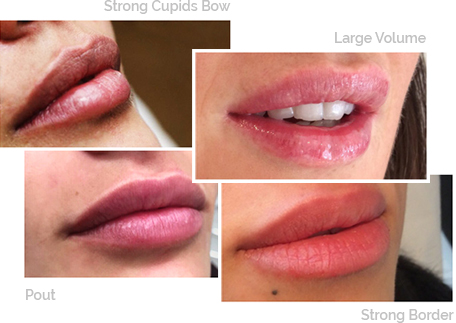 Lip fillers london