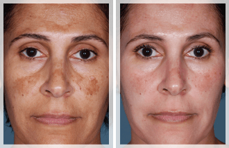 Women with Pigmentation