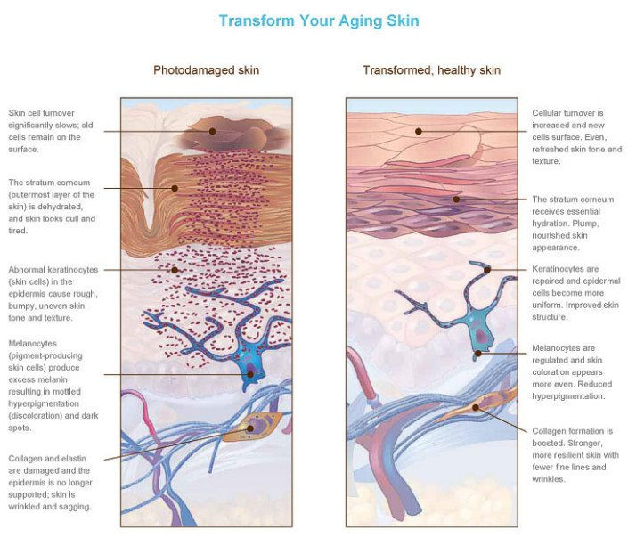 Transform your aging Skin