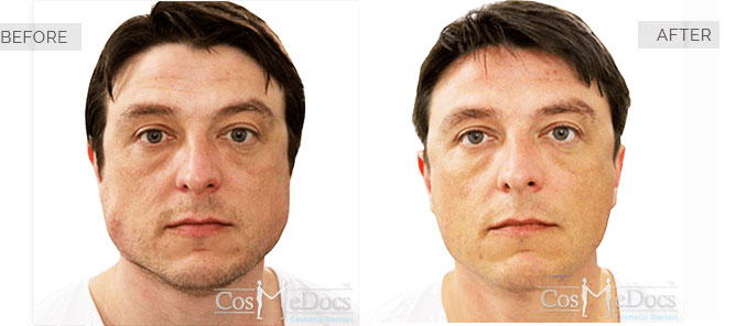 Botox Jaw Reduction Banner-2