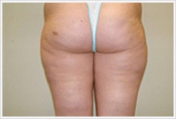 Velashape treatment for Buttock after