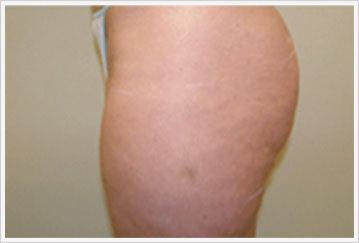 fat reduction via Velashape treatment for thigs after