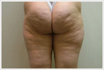 Velashape treatment for Buttock before