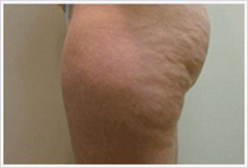 fat reduction via Velashape treatment for thigs before