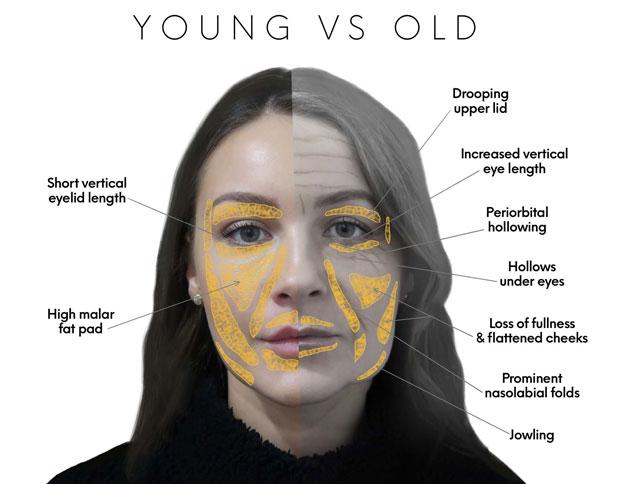 facial treatment areas
