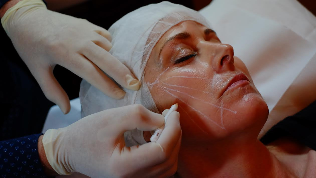 Facial PDO thread lift treatment