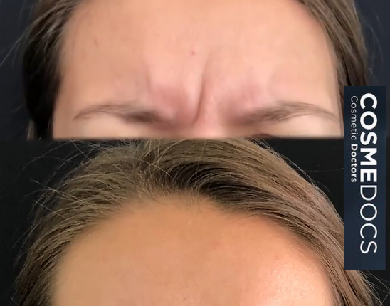 Frown lines Botox
