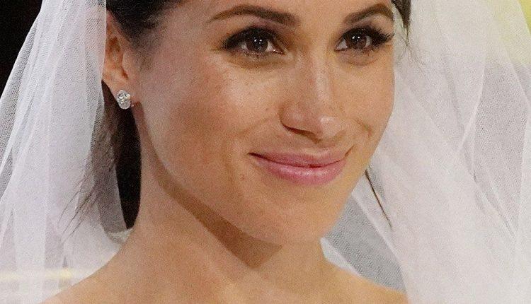 Meghan Baby Botox