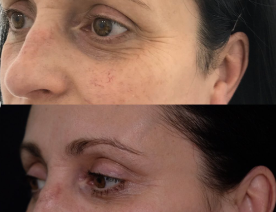 baby botox results