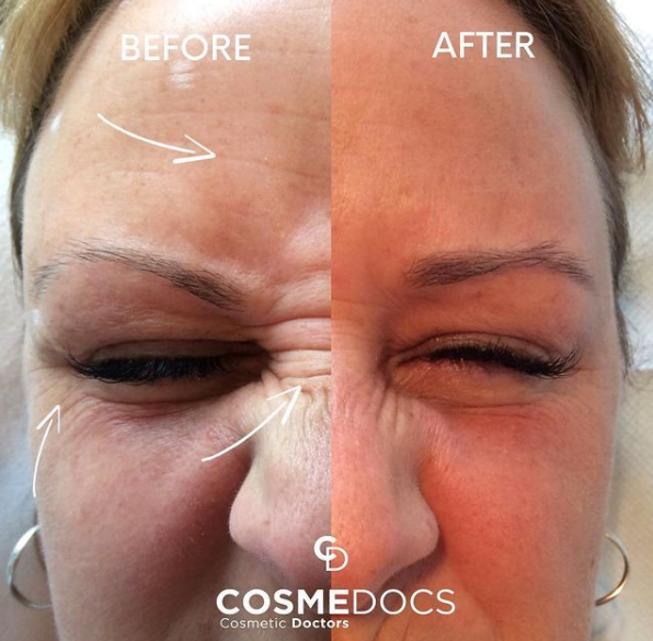 Baby Botox before and after crow's feet