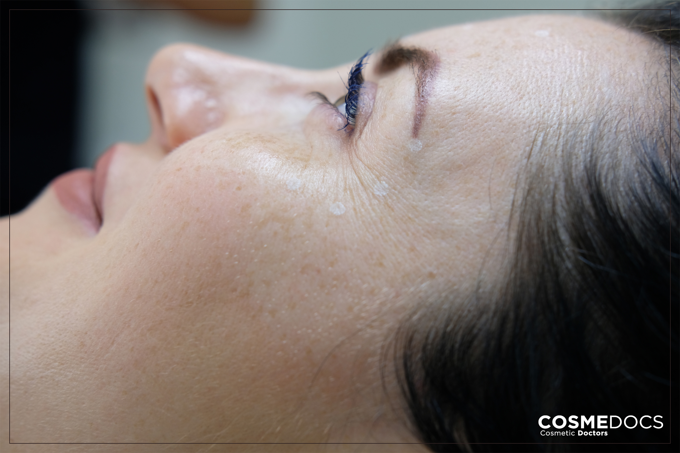 botox for wrinkle