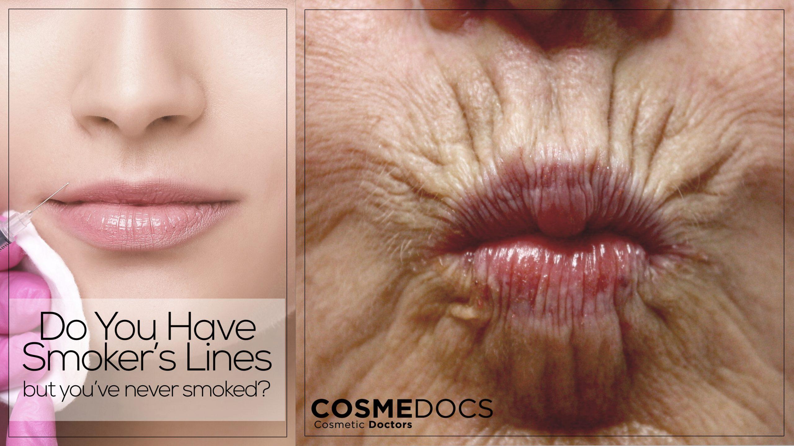 botox smoker line treatment banner
