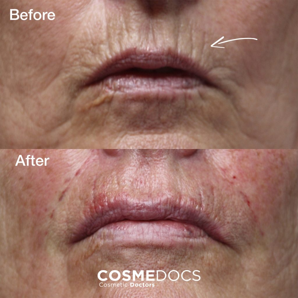 botox treatment smoker line before and after