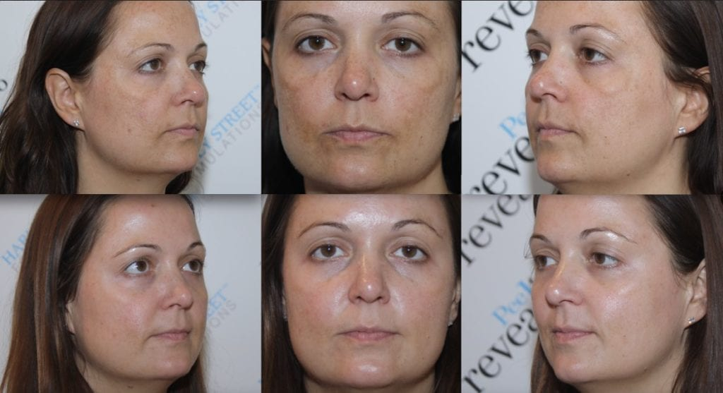 Peel to reveal Befor and After