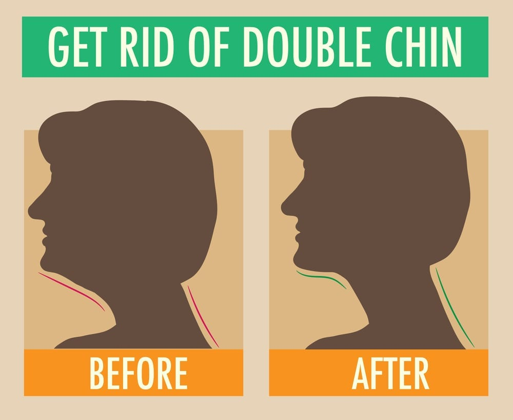 Reduce double chin befor and after Illustration