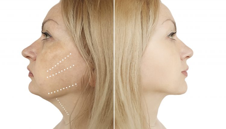 double-chin-removal