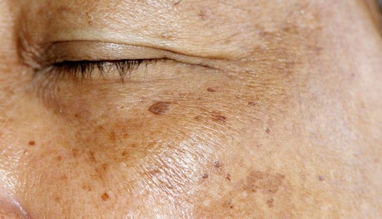 Facial pigmentation
