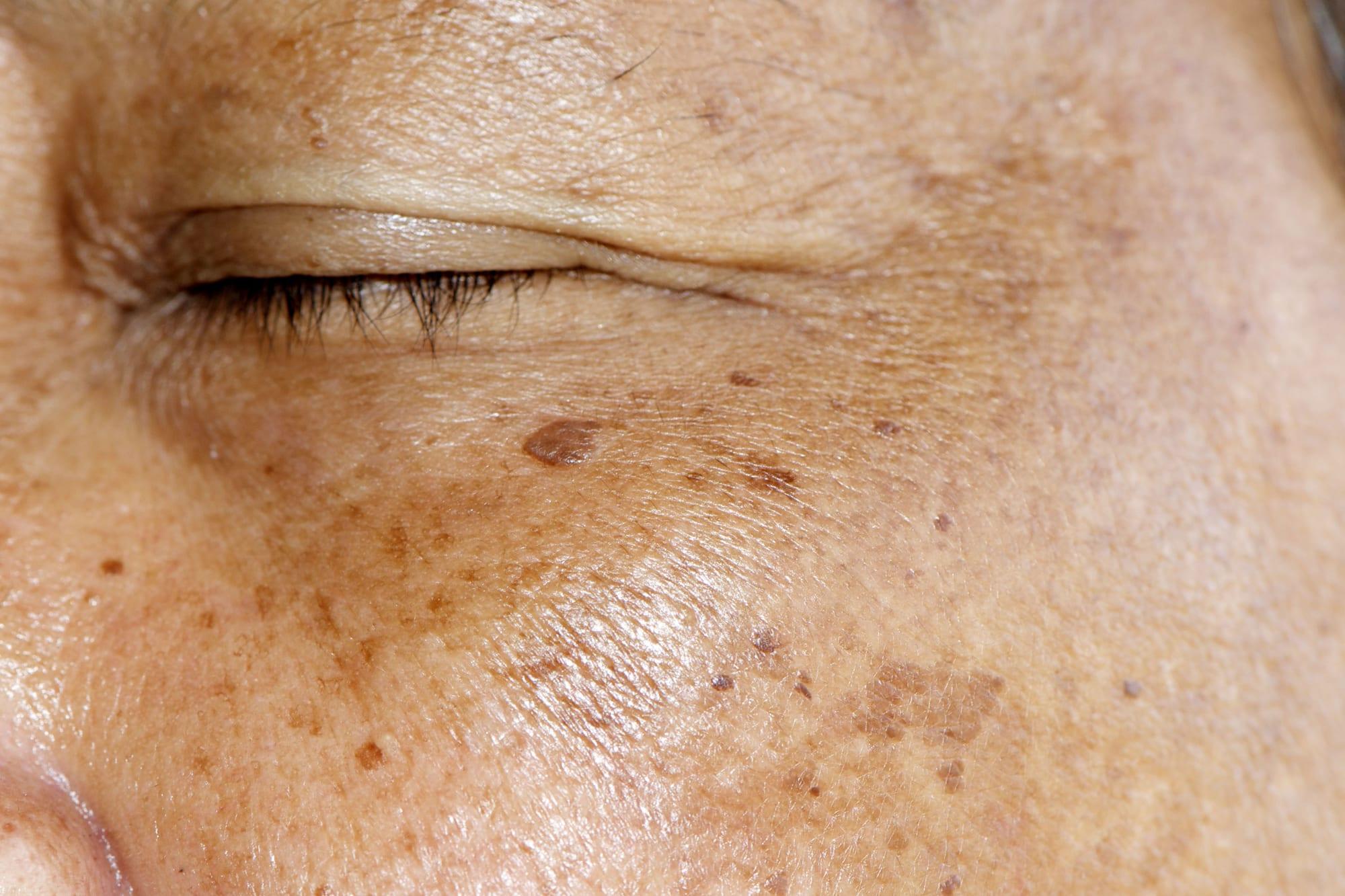 Facial Pigmentation spots