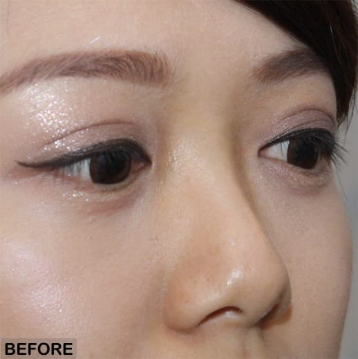 non surgical rhinoplasty asian nose before treatment