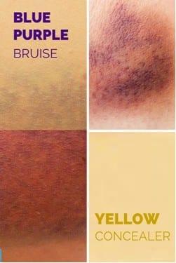 Purple Bruise