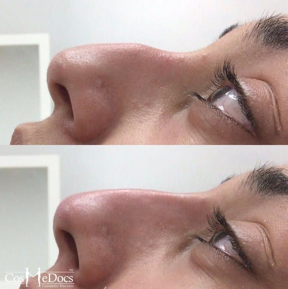 Nose Job for Hooked Nose