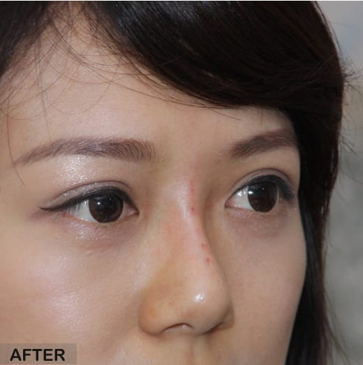 non surgical rhinoplasty asian nose after treatment