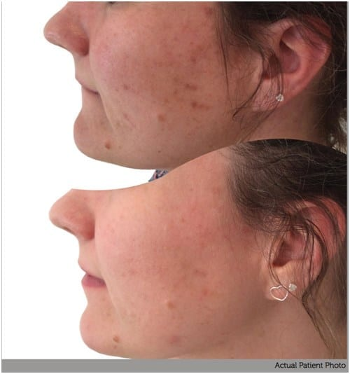 Product Stimulate before and after