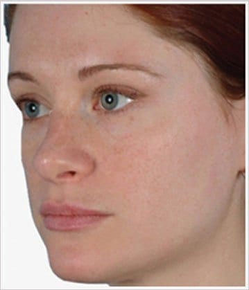 skin-care-before-2