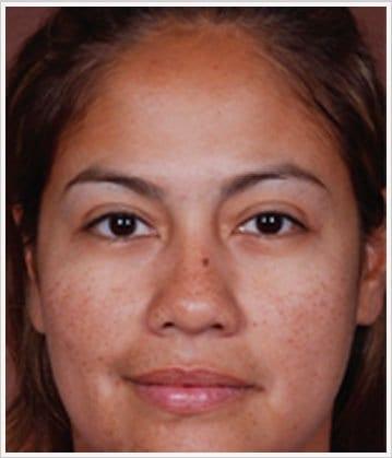skin-care-before-4