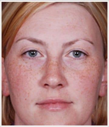 skin-care-before-5