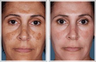 skin-care-right1