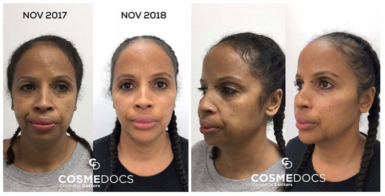chin & jawline filler treatment before and after