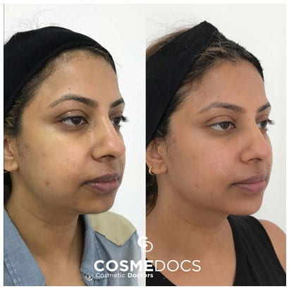 chin filler for round face before and after