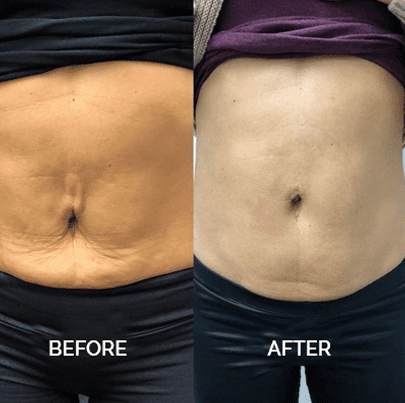 belly fat reduction with laser before and after