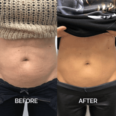 belly treatment with emsculpt before and after