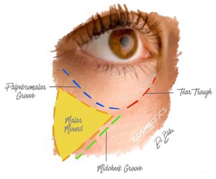 dermal filler treatment for tear trough