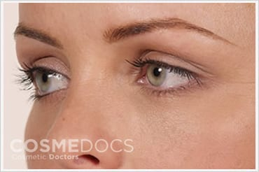 Under Eye Circle Treatment with dermal fillers