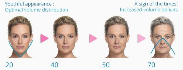 Facial Volume Loss