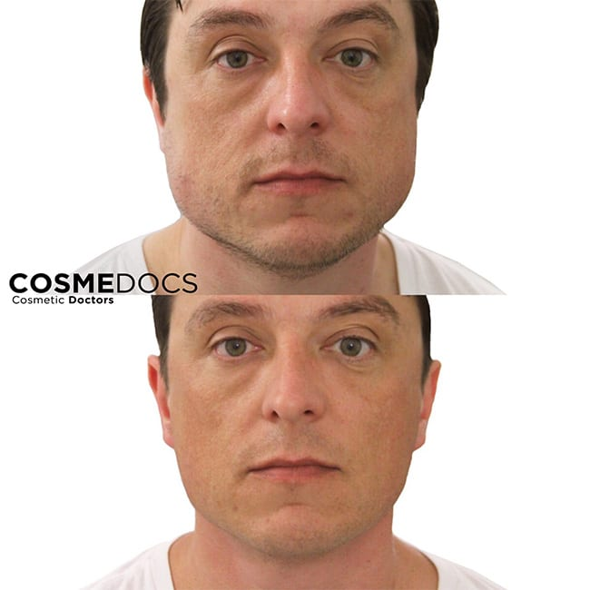 Botox Jawline Treaatment before and after Male