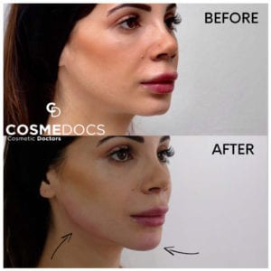 Chin Jawline Filler Treatment before and after - 2ml filler