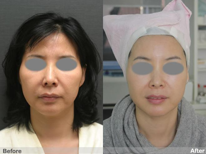 PDO threadlift treatment before and after