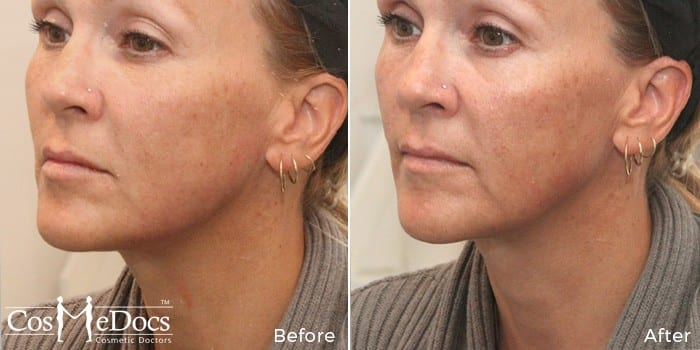 PDO Facelift skin rejuvenation Treatment before and after