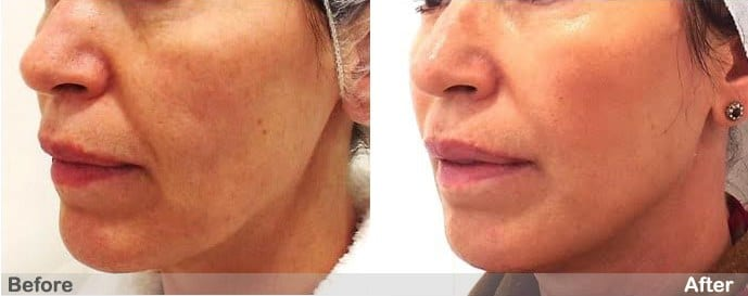 thread face lift before and after