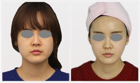 pdo_threads_for_lower_face_skin_tightening_fat_reduction