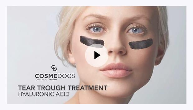 non surgical Tear trough filler treatment video thumbnail
