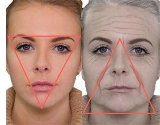 triangle-of-beauty