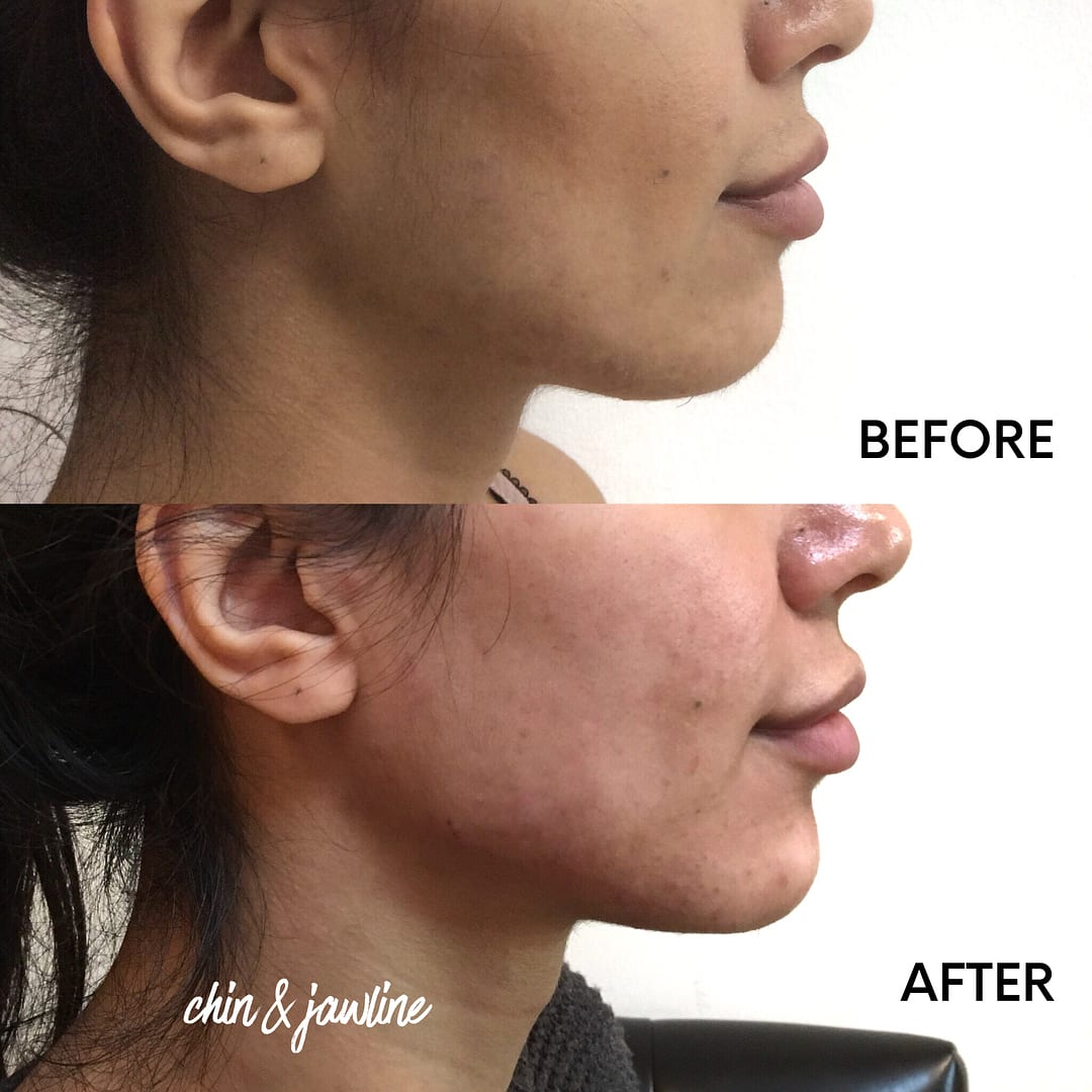 chin-jawline-treatment-big