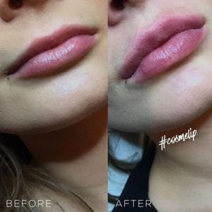 Non Surgical lip enhancement treatment before and after