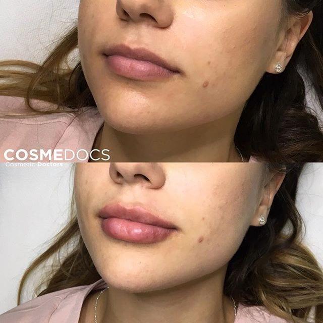 lip-enhancement-treatment-big
