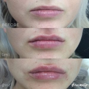 Lip filler enhancement before and after
